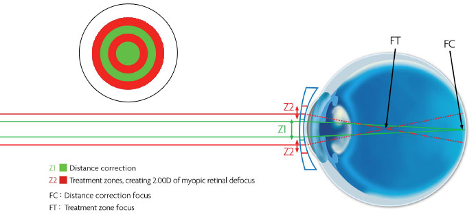 The technology behind MiSight contact lenses for short-sightedness