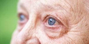 ageing eyes