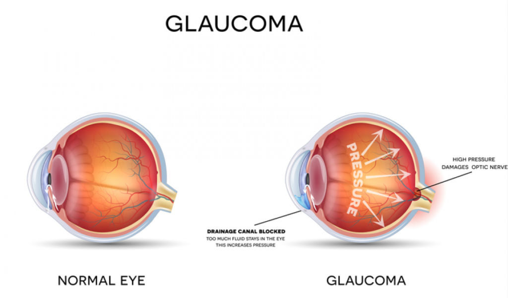 normal eye compared to eye with glaucoma diagram