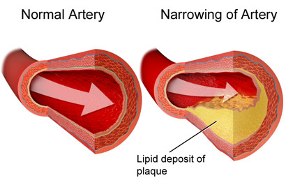 diagram of narrowing artery