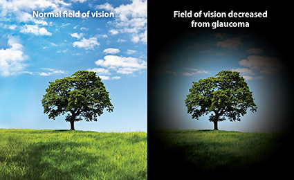 example of how glaucoma can affect sight